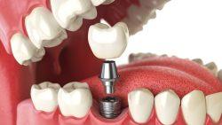 Avantaje majore ale implanturilor dentare